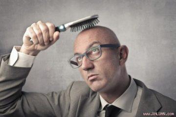 6 phương pháp tự nhiên khắc phục hói đầu