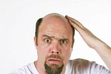Chưa 30 tuổi, tóc đã rụng nhiều và hói ở trán, đỉnh đầu thì làm gì để mọc lại?