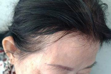 Tóc rụng nhiều sau khi nhuộm: Có cách này mọc dày lại đen hơn rất nhiều