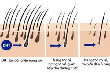 Tóc rụng nhiều thưa hói, lộ rõ da đầu làm sao để mọc lại được?